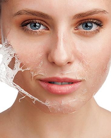skin-peeling-1