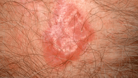 red bumps on scalp