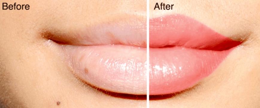treatment of black spots on lips