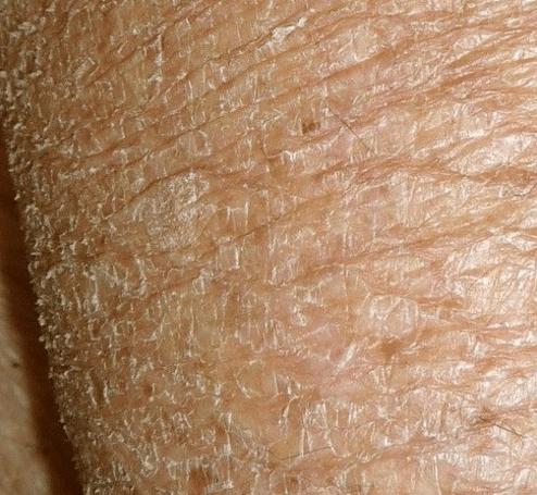 very dry skin on leg