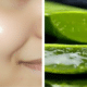 Aloe-Vera-on-face-1