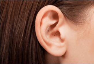 Blackheads in the ear