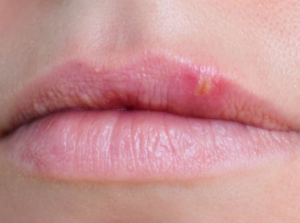 Blisters on lip not cold sore