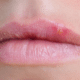 Blisters-on-lip
