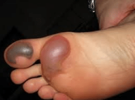 blisters-on-foot-1