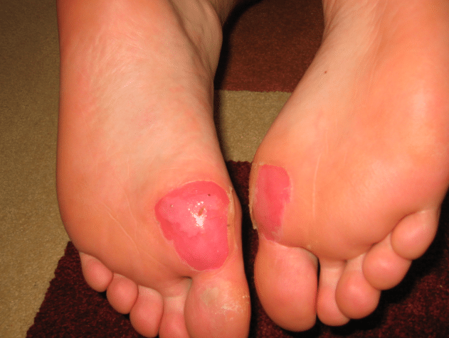blisters under ball of foot