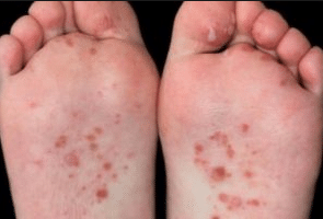 bumps-on-bottom-of-the-feet-1
