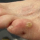 corn-on-toe-1