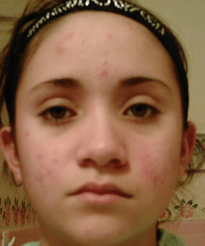 dark marks on face due to pimples