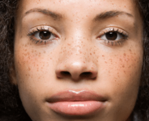 how to remove black patches from face