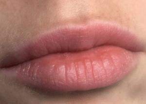 white spots on lips