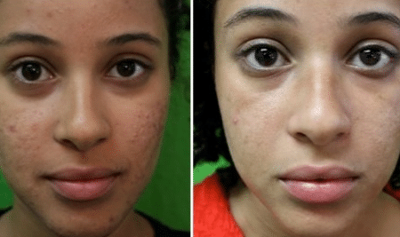 how-to-remove-black-spots-from-face-fast-1