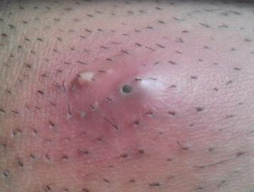 infected-ingrown-hair-on-legs-1