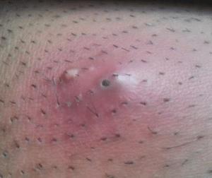 infected ingrown hair