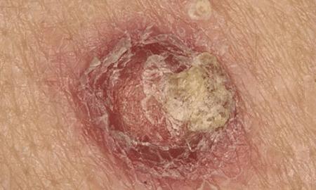itchy-mole-1