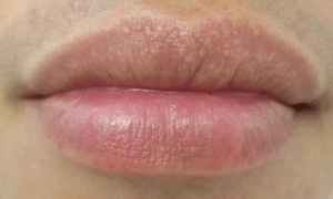 white-spots-on-lips-1