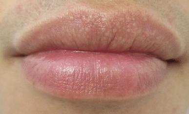 white-spots-on-lips-1