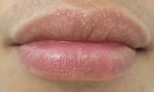 white dots on lips