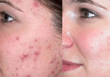 How-to-get-rid-of-pimple-marks