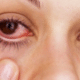 how-to-get-red-eyes-300x188-1