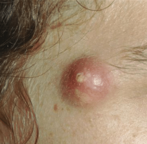 how-to-get-rid-of-a-cyst-300x294-1