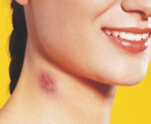 how to remove a hickey