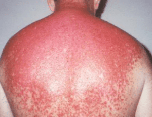 sunburn on skin