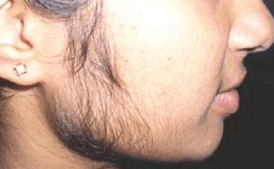 how-to-remove-face-hair-for-women-1