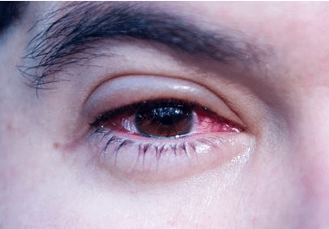 how to treat pink eye