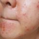 oily-skin-pimples-300x249-1