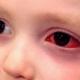 one-pink-eye-1