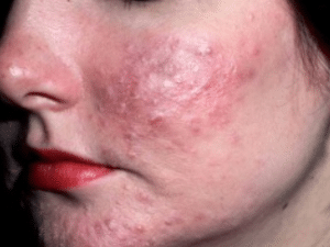 scabies on face picture