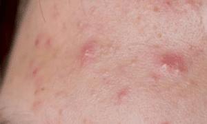 sebaceous-cyst-on-forehead-1