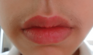 upper-lip-hair-300x228-1