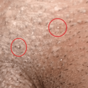 pimple on vagina
