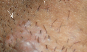 pimples-on-vag-300x243-1