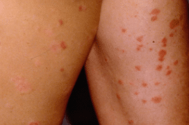 red-spots-on-skin-1