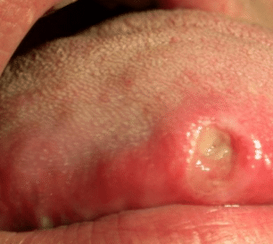 canker sore on tongue