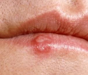 cold sore on lip