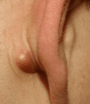 cyst behind ear
