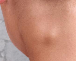 lumps under skin
