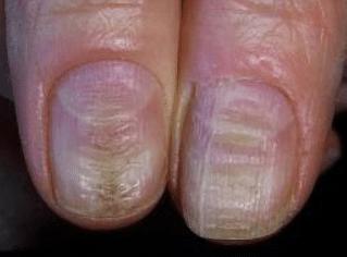 horizontal ridges on nails