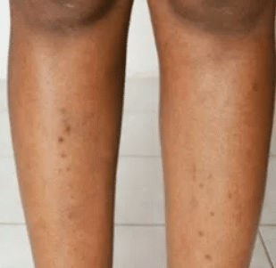 ingrown hair on legs