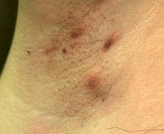 itchy armpit rash