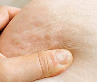 lumps-under-skin-1