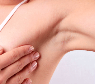 pain-under-left-armpit-female-1-1
