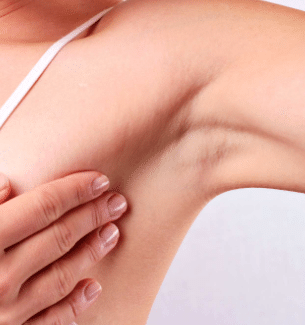 itchy underarms causes