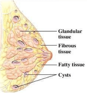 painful cysts in breast