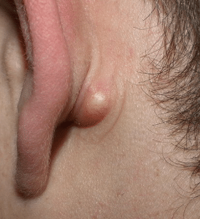 pea-sized-lump-behind-the-ear-1