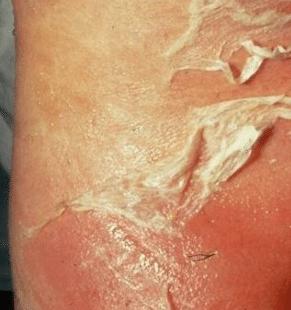 penis-skin-peeling-1